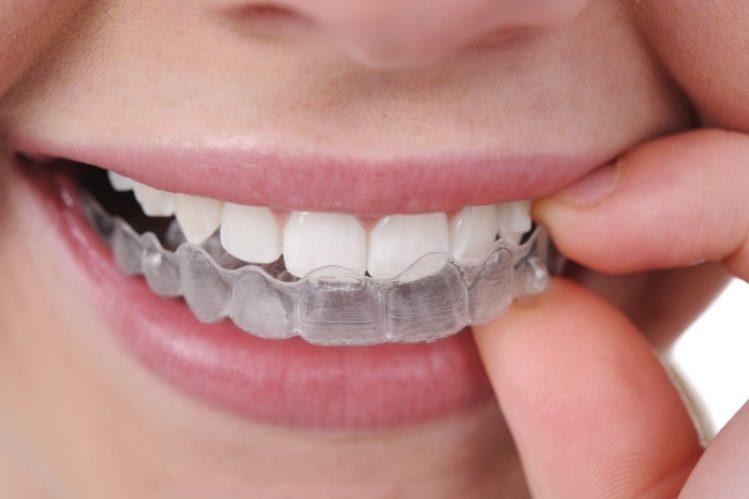 Descubre 8 de los beneficios de llevar ortodoncia invisble