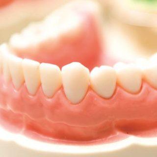Dental prosthesis dental