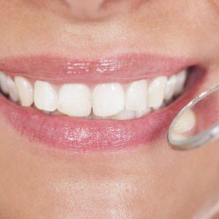 estética dental centro odontológico integral mallorca