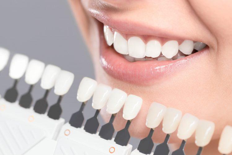 carillas dentales Palma de Mallorca